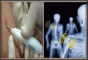 implant_chip